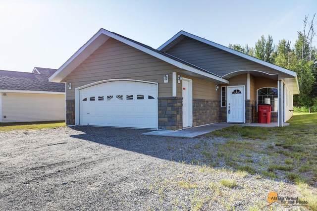 9670 E Forest Grove Circle #9B, Palmer, AK 99645 (MLS #20-10080) :: RMG Real Estate Network | Keller Williams Realty Alaska Group