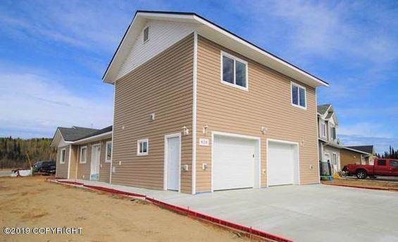 428 Spence Avenue, Fairbanks, AK 99701 (MLS #19-7104) :: Wolf Real Estate Professionals