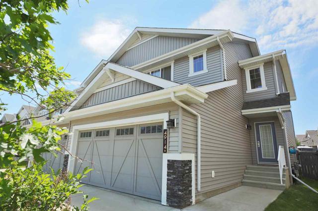 4914 213 Street, Edmonton, AB T6M 0G6 (#E4077619) :: The Foundry Real Estate Company
