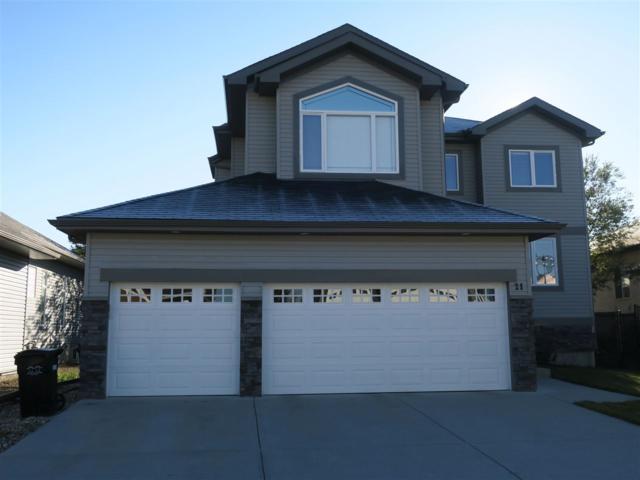 21 Kingdom Place, Leduc, AB T9E 0J2 (#E4130149) :: The Foundry Real Estate Company
