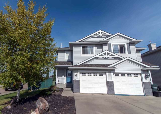 78 Chestermere Way, Sherwood Park, AB T8H 2S3 (#E4173905) :: The Foundry Real Estate Company
