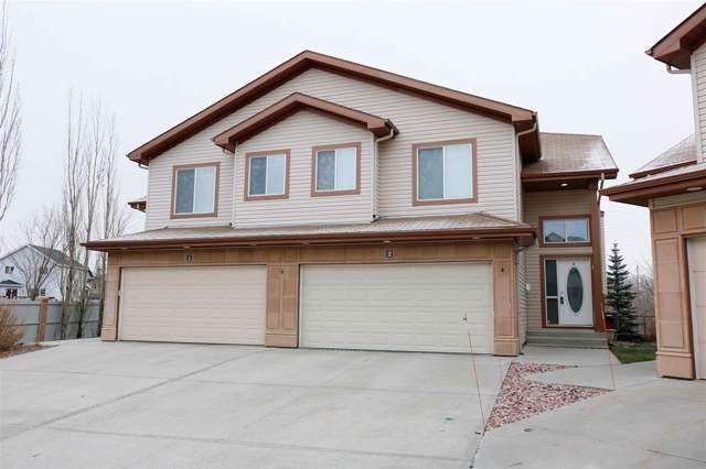 2 2815 34 Avenue, Edmonton, AB T6T 0K7 (#E4179186) :: Initia Real Estate