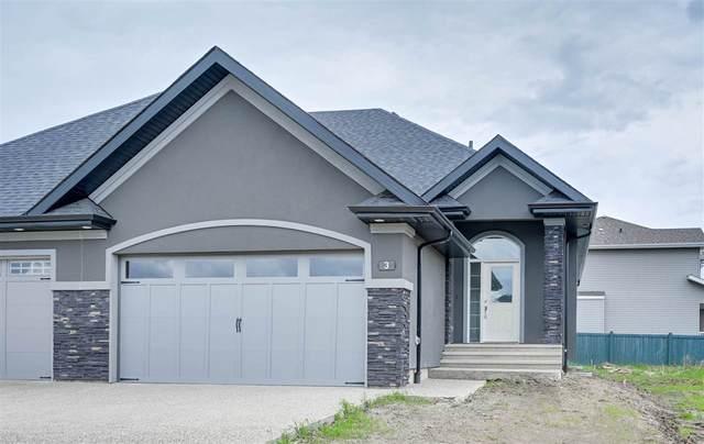 3 20425 93 Avenue, Edmonton, AB T5T 7C7 (#E4217387) :: The Foundry Real Estate Company