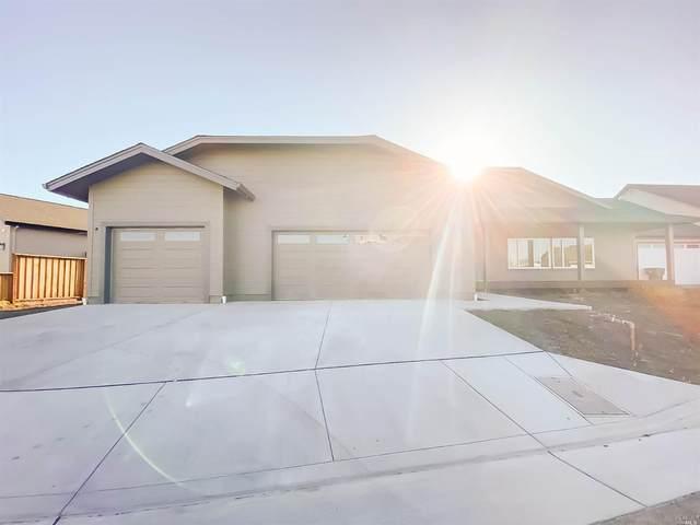 47 Dorchester Drive, Santa Rosa, CA 95403 (#321037255) :: Intero Real Estate Services
