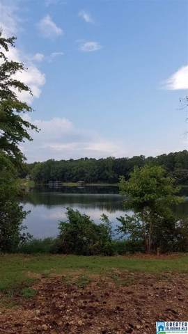 000 Amelia Dr #9, Lakeview, AL 35111 (MLS #862534) :: Gusty Gulas Group