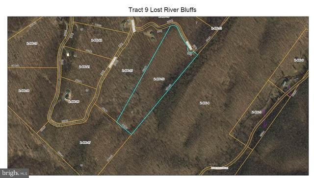 Eagle Lane, MATHIAS, WV 26812 (#WVHD106494) :: The Redux Group