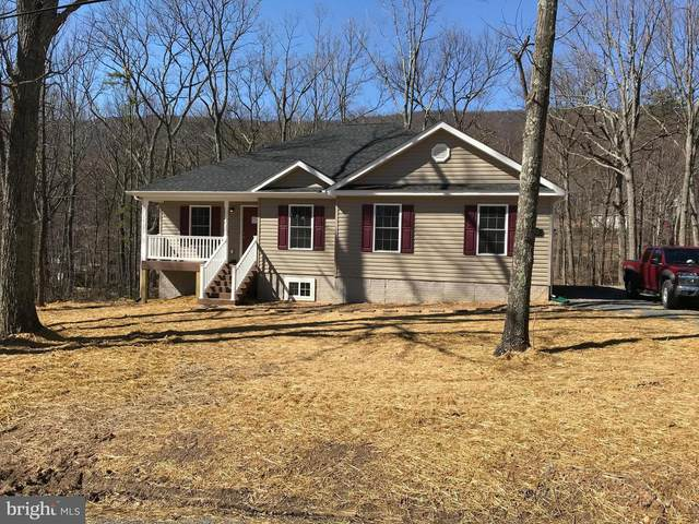 W-5 Willa Cather, GORE, VA 22637 (#VAFV162472) :: ExecuHome Realty
