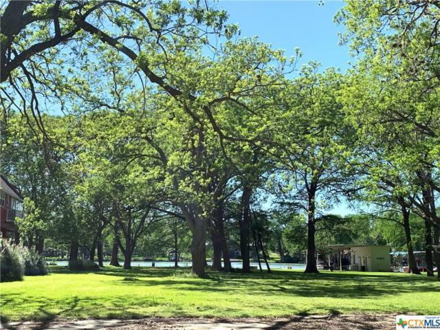 304 Turtle Lane, Seguin, TX 78155 (#374967) :: Realty Executives - Town & Country