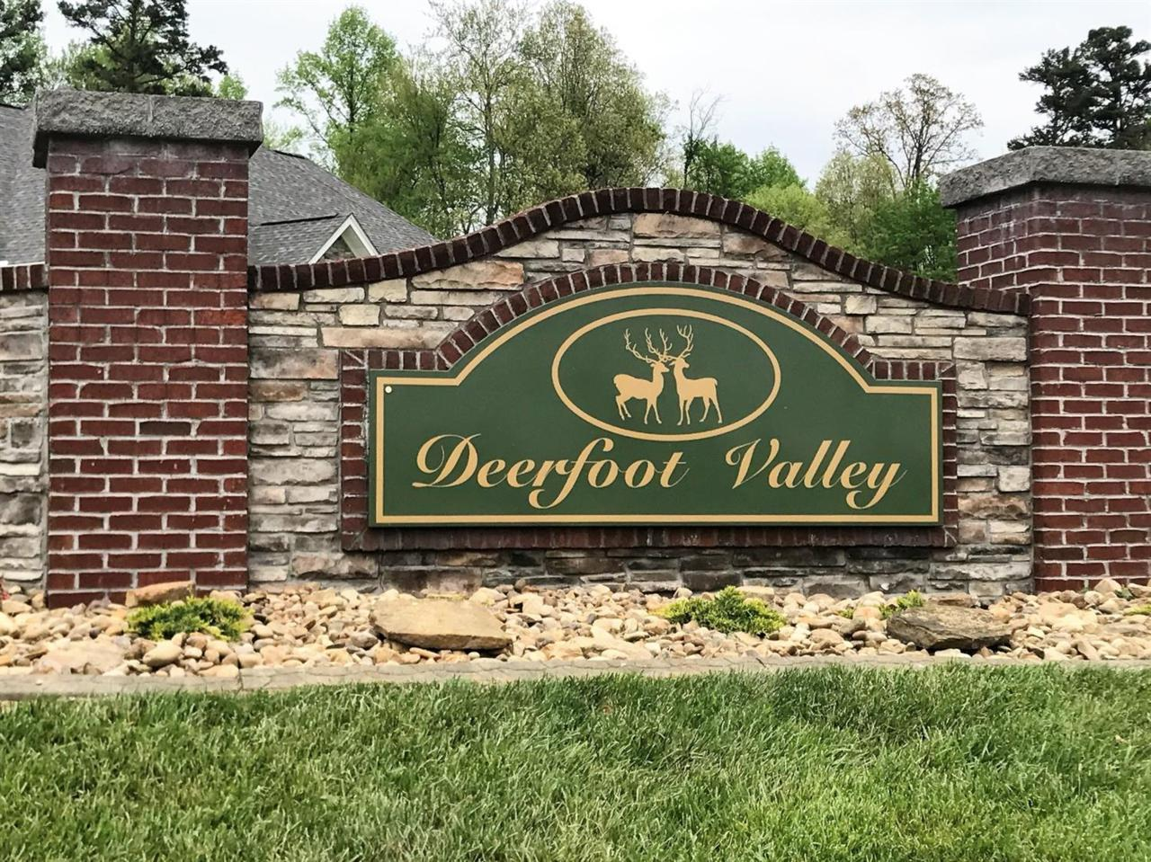 33 Deerfoot Valley - Photo 1