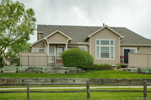 5603 E Nichols Place, Centennial, CO 80112 (MLS #3113203) :: Neuhaus Real Estate, Inc.