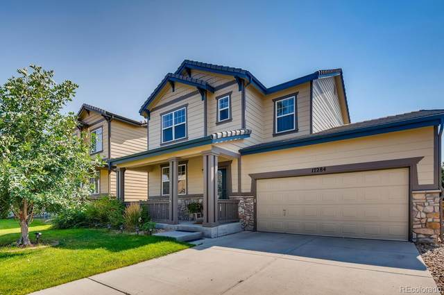 17284 E 102nd Place, Commerce City, CO 80022 (MLS #6063917) :: Bliss Realty Group
