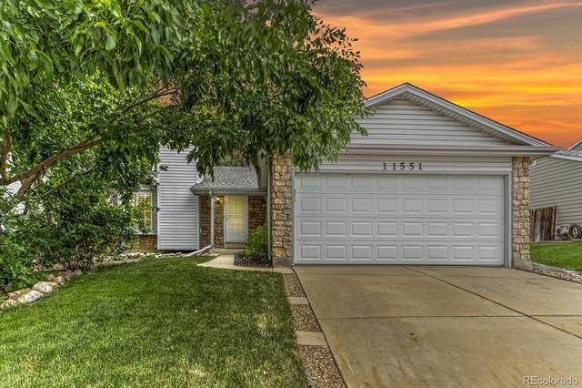 11551 Otis Street, Westminster, CO 80020 (MLS #6500355) :: Kittle Real Estate