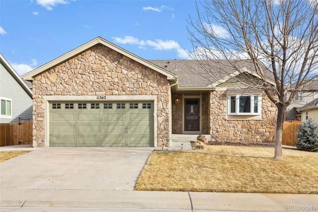 11362 Jersey Lane, Thornton, CO 80233 (#7909441) :: HergGroup Denver