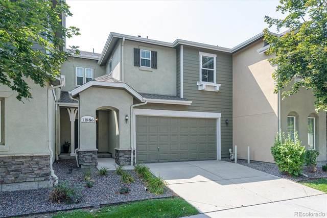 11886 E Fair Avenue, Greenwood Village, CO 80111 (MLS #9276660) :: Clare Day with Keller Williams Advantage Realty LLC