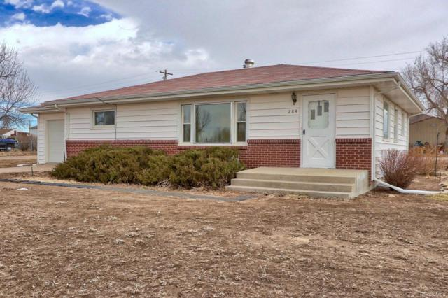 284 S Fetzer Street, Byers, CO 80103 (#8605784) :: The Heyl Group at Keller Williams