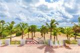9341 Collins Ave - Photo 4