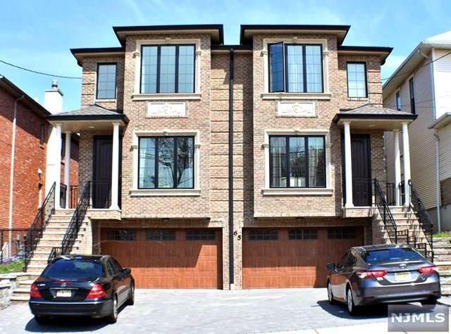 65 W Homestead Avenue A, Palisades Park, NJ 07650 (MLS #20016846) :: The Sikora Group