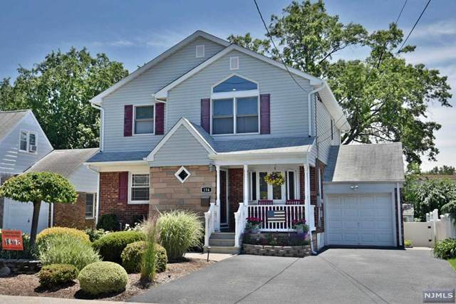 154 Hillman Drive, Elmwood Park, NJ 07407 (#20023767) :: Bergen County Properties