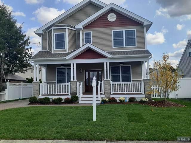 608 Oak Avenue, Saddle Brook, NJ 07663 (MLS #20044575) :: The Dekanski Home Selling Team