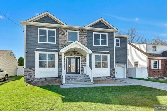 180 Schepis Avenue, Saddle Brook, NJ 07663 (MLS #21013281) :: The Dekanski Home Selling Team
