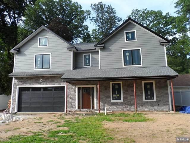 896 Oradell Avenue, Oradell, NJ 07649 (MLS #21034564) :: Kiliszek Real Estate Experts