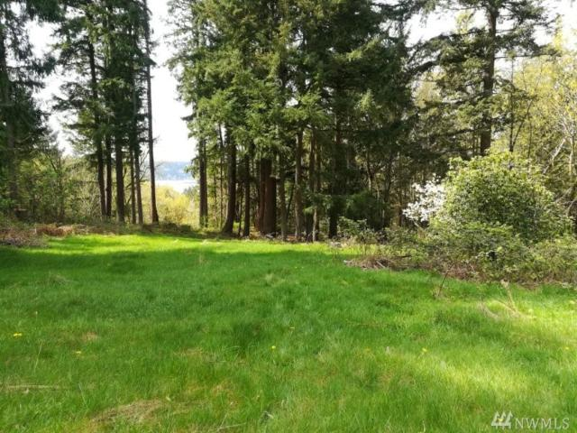 20420 8th St SE, Sammamish, WA 98074 (#1278806) :: Homes on the Sound