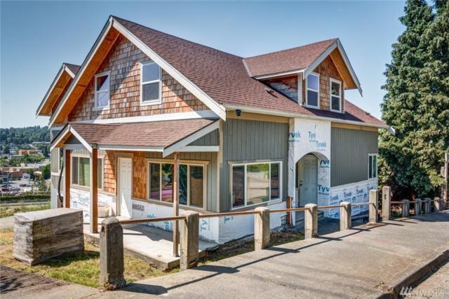 339 Cedar Ave S, Renton, WA 98057 (#1290324) :: Icon Real Estate Group