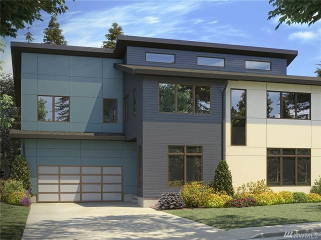 11905 84th Ave NE, Kirkland, WA 98034 (#1311854) :: Real Estate Solutions Group