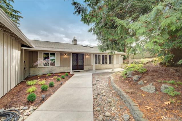 6710 150th Ave NE, Redmond, WA 98052 (#1376977) :: Beach & Blvd Real Estate Group