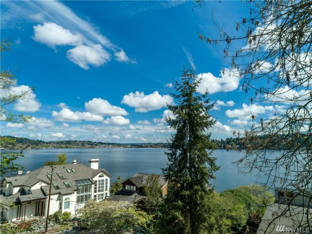 146 Xx 40th Ave NE, Lake Forest Park, WA 98155 (#1442031) :: KW North Seattle