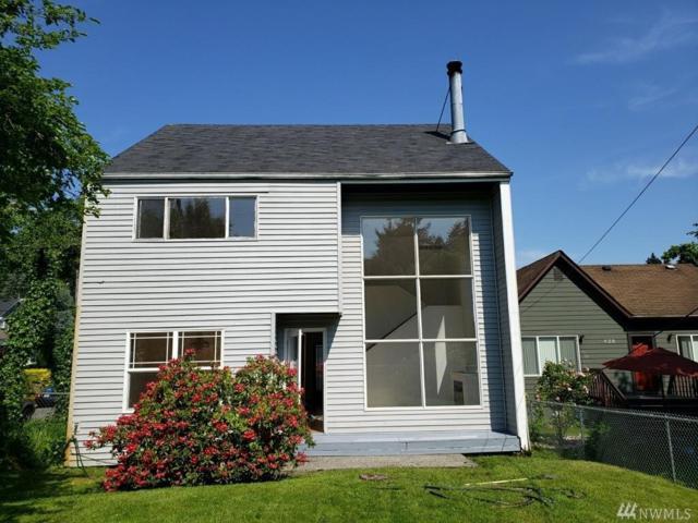 432 30th Ave E, Seattle, WA 98112 (#1467935) :: Better Properties Lacey