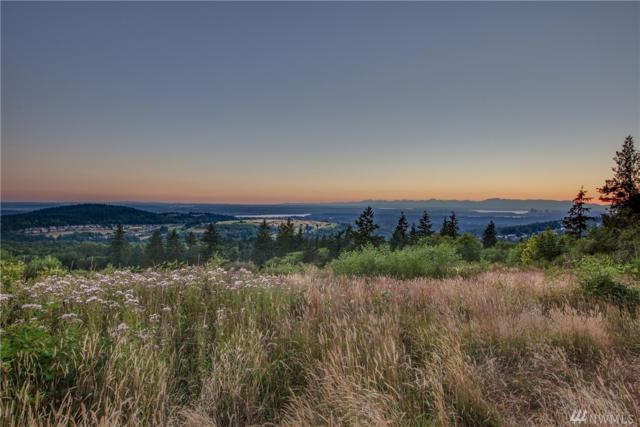 6615 170th Place SE, Bellevue, WA 98006 (#1472210) :: Ben Kinney Real Estate Team