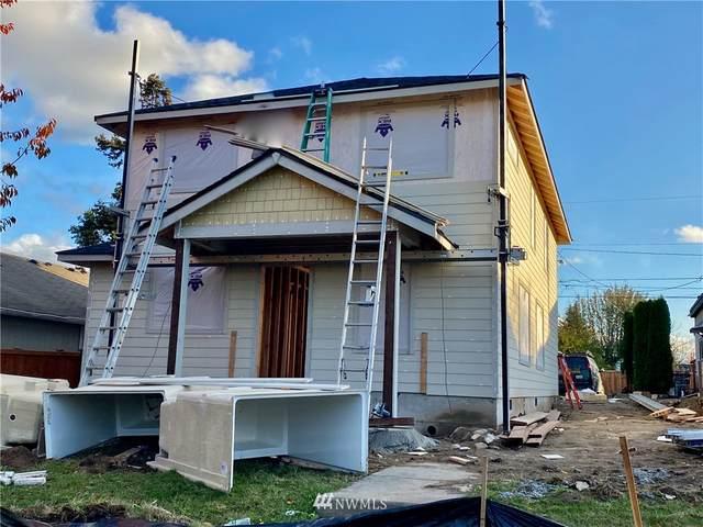 820 E 60th Street, Tacoma, WA 98404 (#1687835) :: Icon Real Estate Group