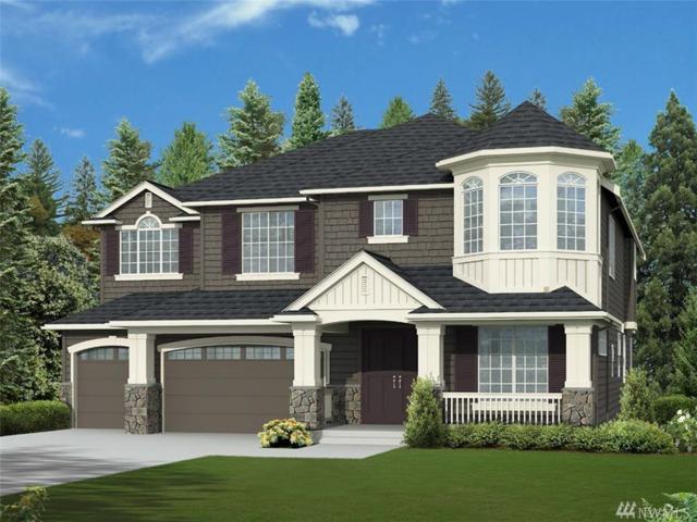 17259 NE 15th St, Bellevue, WA 98008 (#1364218) :: Icon Real Estate Group