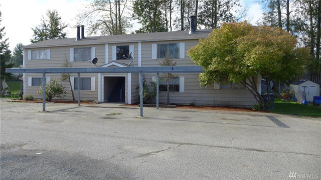 804 74th St E 1 - 4, Tacoma, WA 98404 (#1375414) :: Real Estate Solutions Group