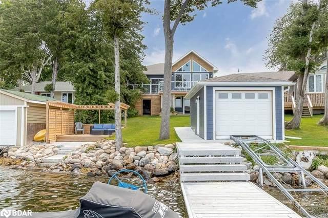 5820 Victoria Park Road, Ramara, ON L3V 0T3 (MLS #40141932) :: Forest Hill Real Estate Collingwood