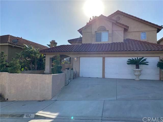 462 Somerset Circle, Corona, CA 92879 (#CV20229941) :: Better Living SoCal