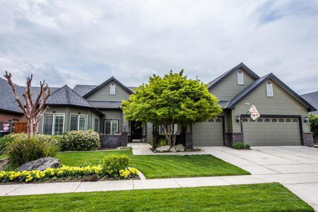 6601 W Damsen Avenue, Visalia, CA 93291 (#147286) :: Robyn Icenhower & Associates